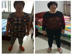 减肥20斤,血压从150/100降到了120/80
