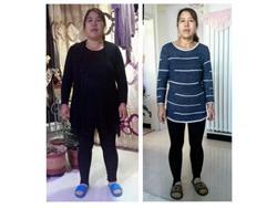 减肥47斤以后,我重新又拥有了美丽,失眠和抑郁也好了
