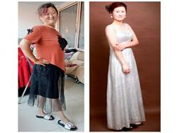 5个月减肥50斤,糖尿病也停药了,腰也不疼了,月经也恢复了正常,最安全有效的饮食减肥