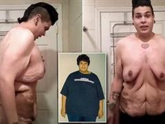 美国男子减肥246斤 皮肤极度松弛令人震惊