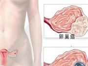 如何做好癌症的三级预防 三款宫颈癌患者的食疗菜谱