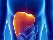 体检检出脂肪肝,应该怎么办?