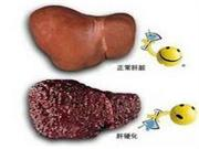 肝硬化病人的饮食要注意什么